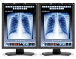 NEC MDC3-BNDN1 Bundle 2 Monitors and Graphics Card